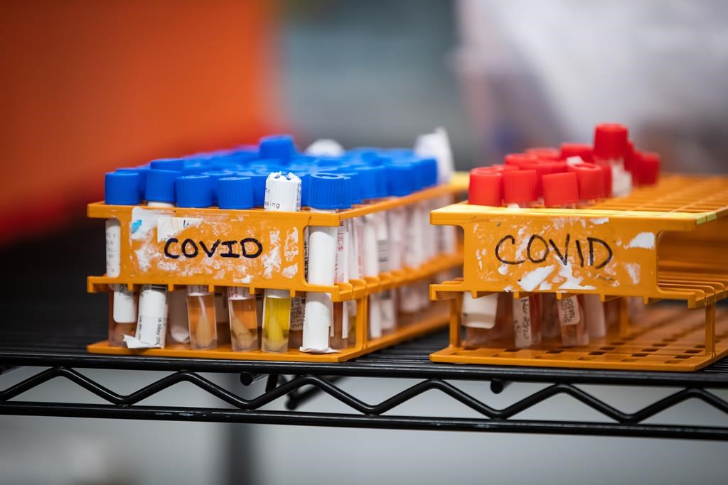 FILE- Specimens to be tested for COVID-19 are seen at a lab in Surrey B.C. on Thursday